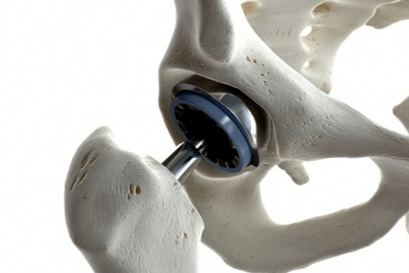 Are Hip Replacements Covered Under Medicare?